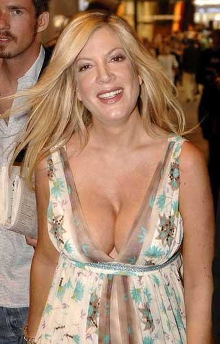 """string"" implants such as Chelsea's in breast augmentation surgery ."