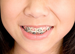 essay on getting braces How to use grammar braces braces, brackets and parentheses are each slightly different in style but, they each follow similar rules, which is why they may often be used interchangeably getting a patent (a right guaranteed by the constitution) can take several years to accomplish as demonstrated above, the usage of.