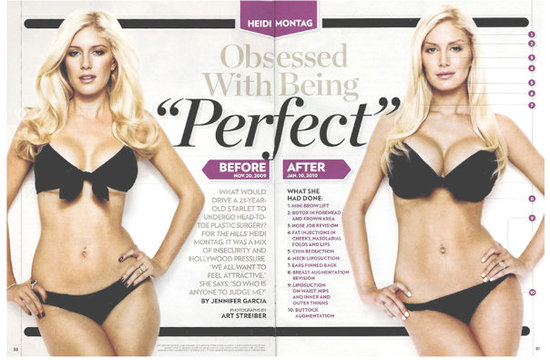heidi montag plastic surgery before and after people. Strangest carheidi montag