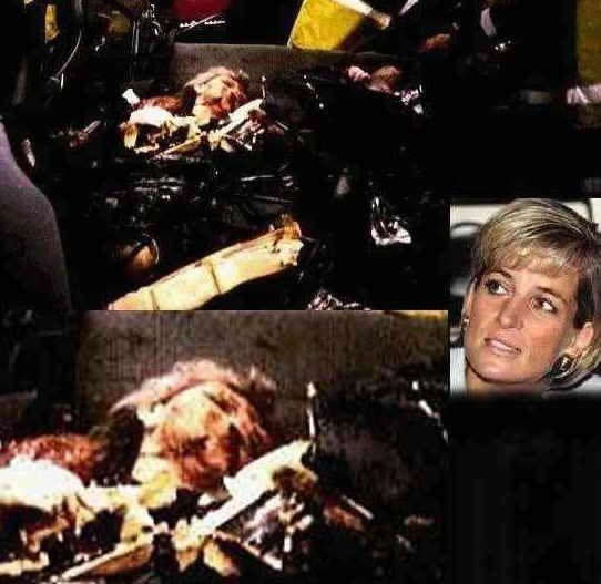 princess diana crash photos. princess diana crash body.